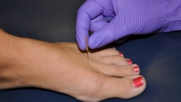 Dry Needling for Foot Pain Warners Bay