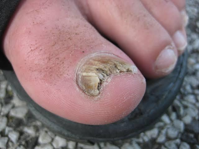 Nail Fungus